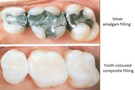 White fillings compared to regular silver fillings