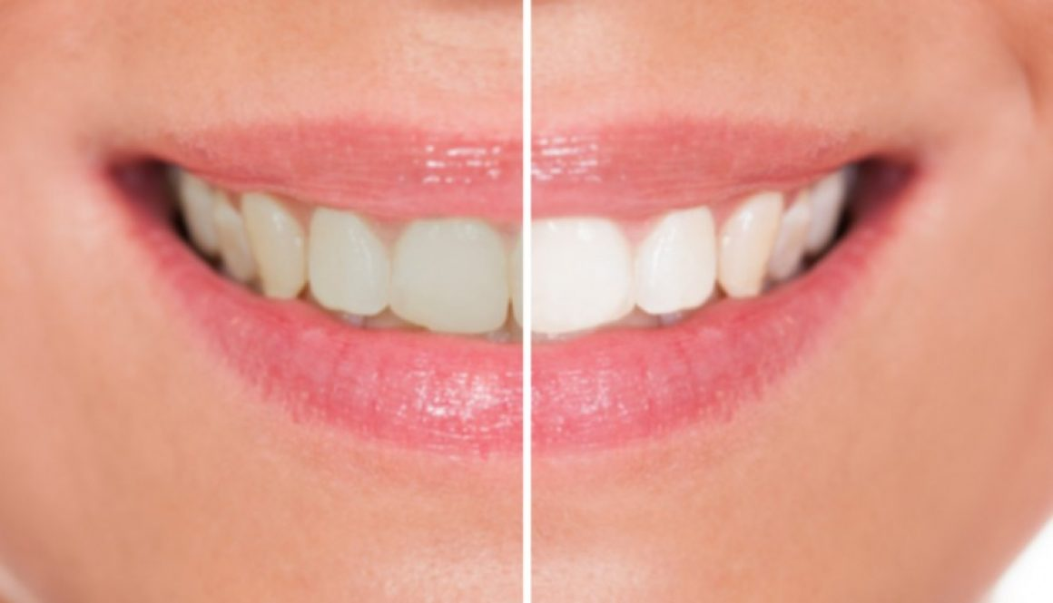 teeth-whitening-dentistryon7