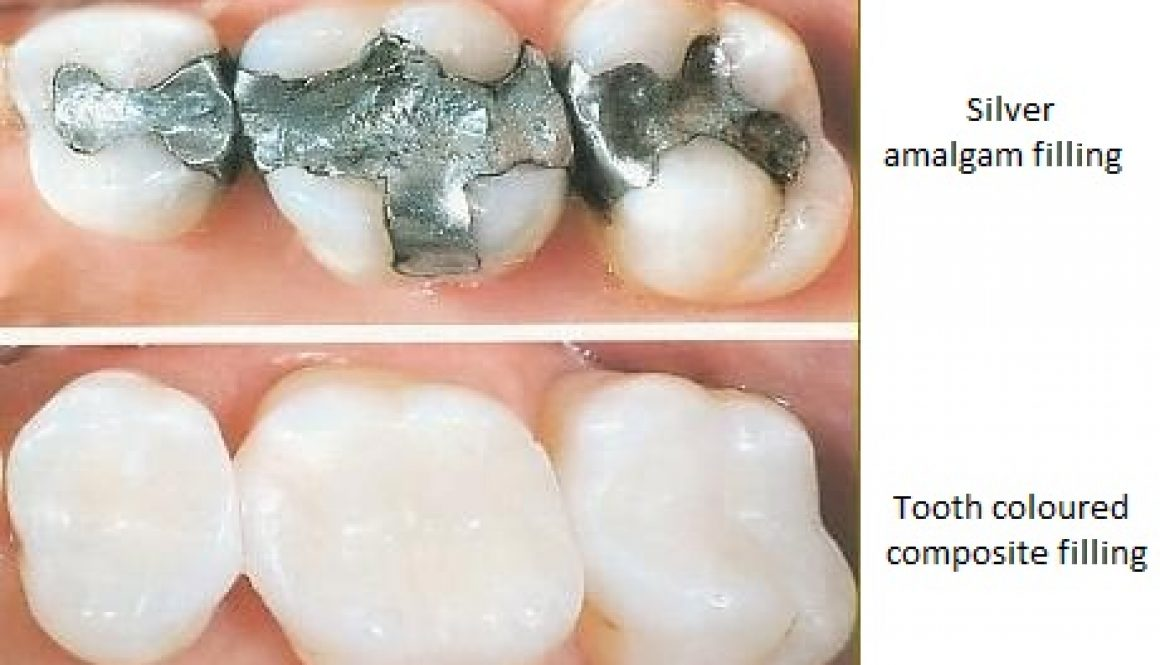 white-fillings-dentistryon7