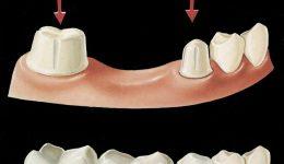 crown-bridge-dentistryon7