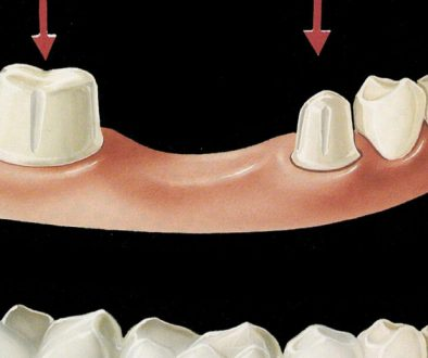 crown-bridge-dentistryon7
