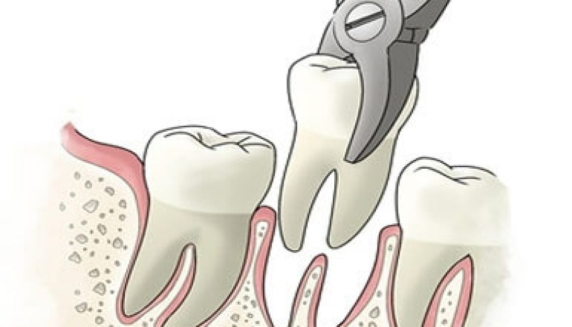 tooth-extraction-dentistryon7