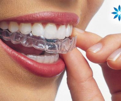 Invisalign-dentistry-on-7-service-848x518
