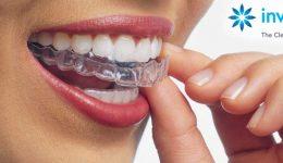 invisalign-dentistryon7