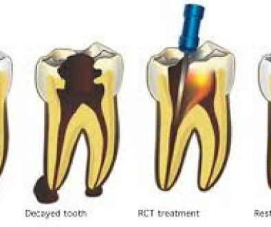 root-canal-treatment-dentistry-on-7